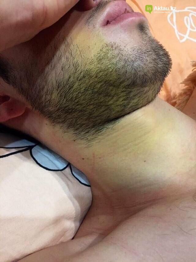 В полиции прокомментировали избиение парня в бане Актау, фото-2