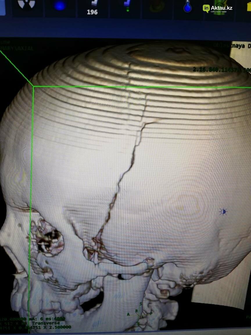 Футбольные ворота рухнули на голову ребенку в Жетыбае, фото-1