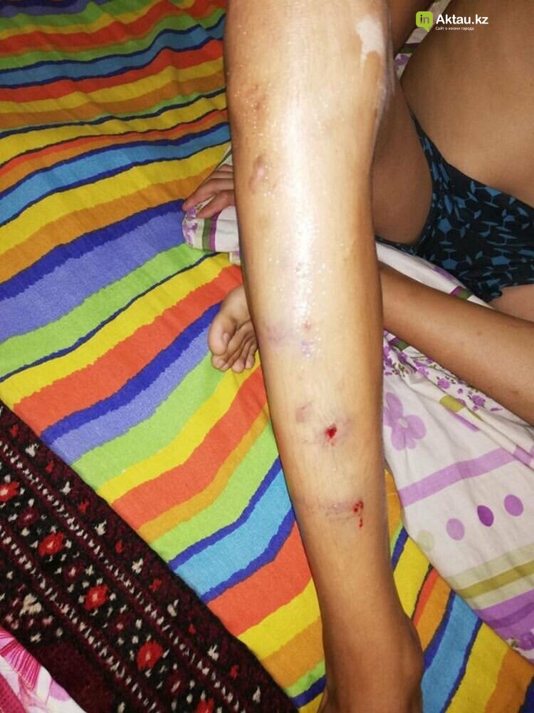 В Актау ребенок провалился в люк и получил травмы, фото-2