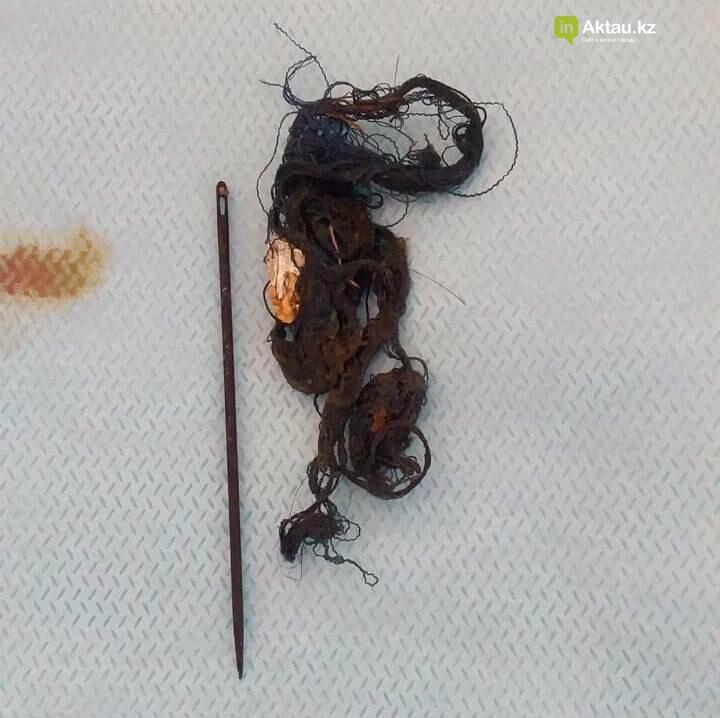 Волосы и иглу извлекли из кишечника подростка в Актау, фото-2