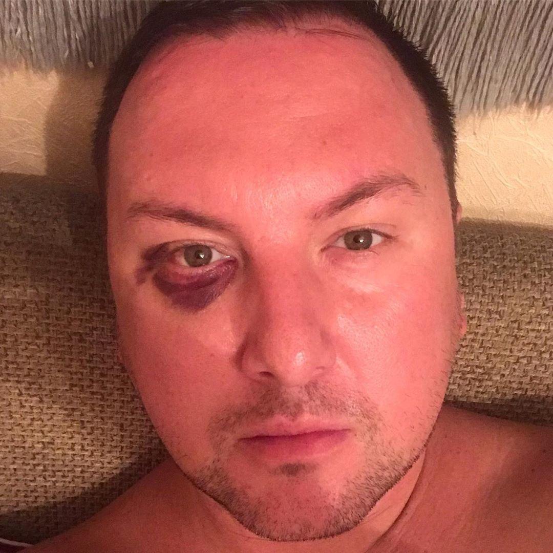 Работающего в Актау шоумена избили в собственной квартире, фото-1