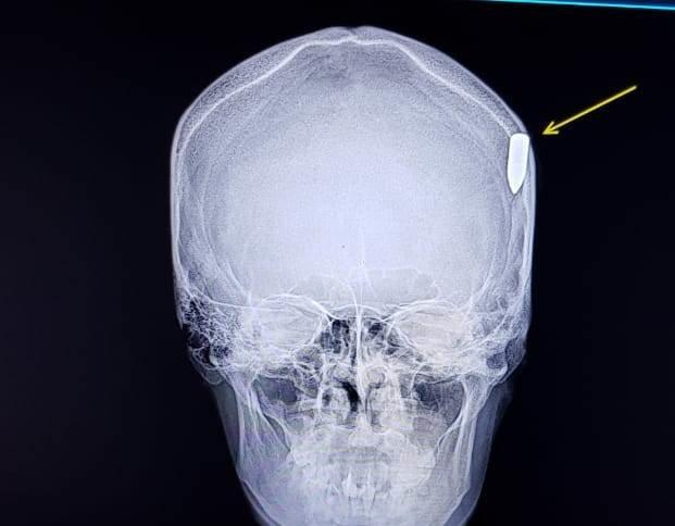 В Мангистауской области солдат получил пулевое ранение в голову, фото-2