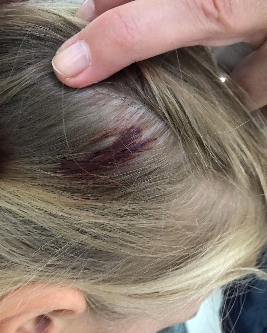 В Актау пятилетняя девочка попала под колеса электромобиля , фото-1