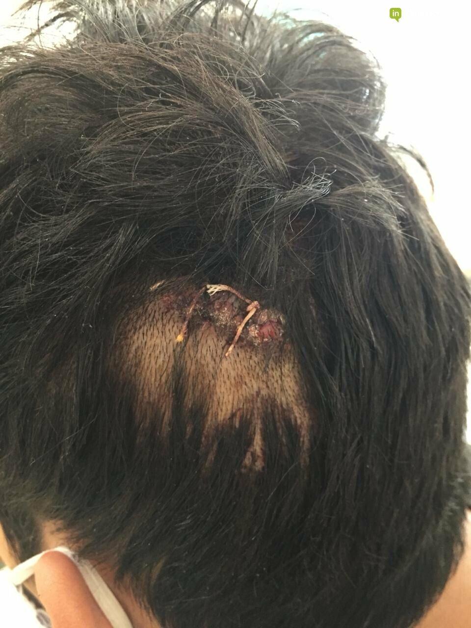 Один из пострадавших в групповом избиении